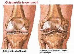 este posibil să învingem artroza articulației genunchiului shungită pentru dureri articulare
