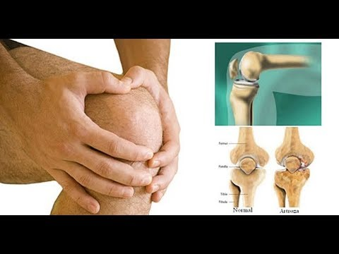unguente pentru tratamentul artrozei genunchiului)