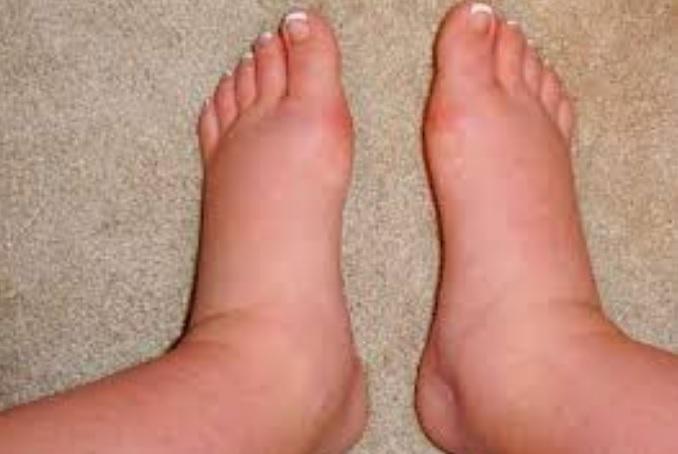 picioare umflate cauza