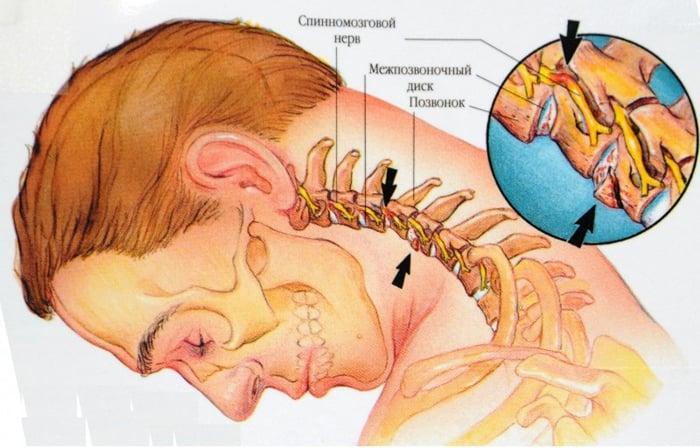 unguent împotriva osteochondrozei coloanei vertebrale cervicale)