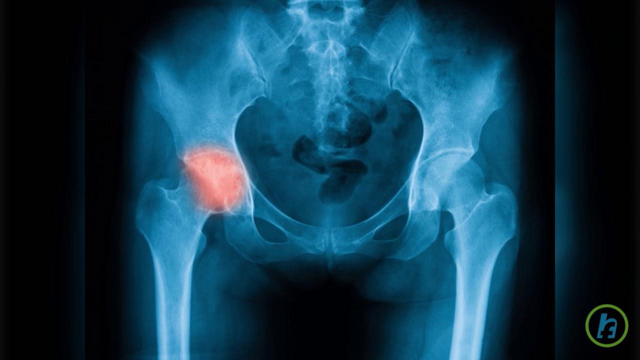 dureri de picioare articulația șoldului