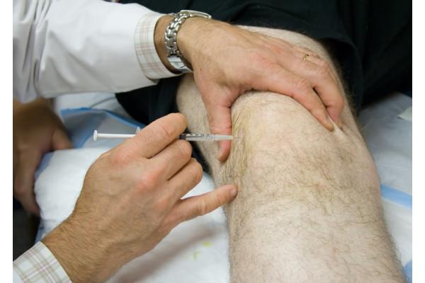 injecție de gel în articulația genunchiului