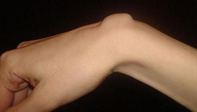 boli articulare ale încheieturii