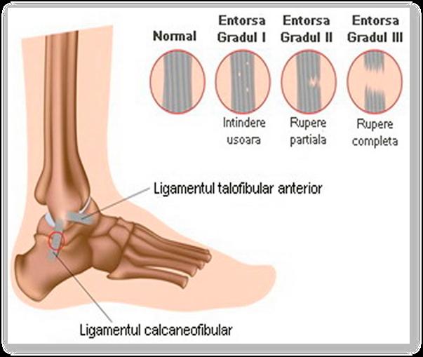 Tratamentul sinuzitei gleznei. De ce se umfla picioarele? - cauze posibile - Cancer