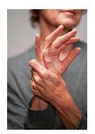 artrita periferica