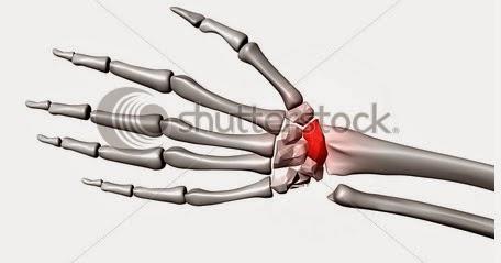 tratamentul fracturilor de umăr