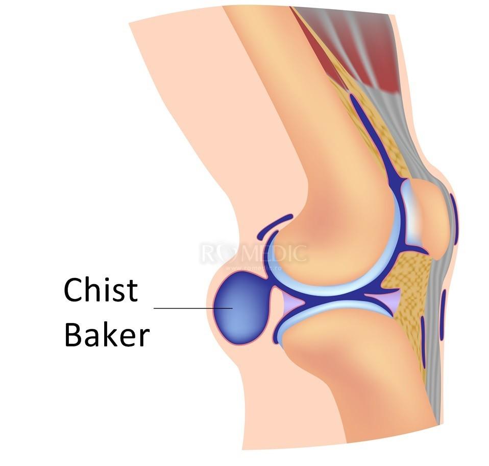 mersul genunchiului cu boală articulară