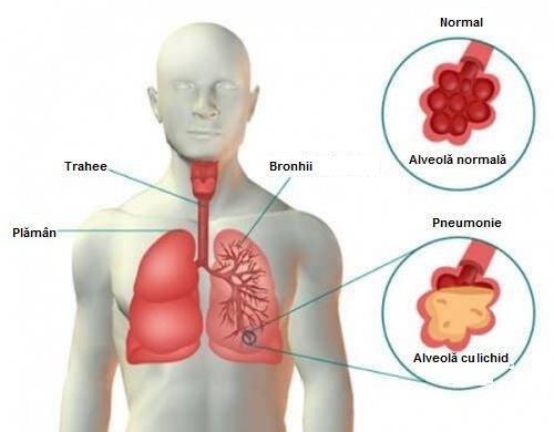 de ce articulațiile provoacă durere după pneumonie
