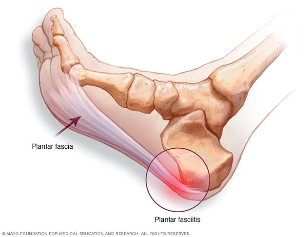 dureri articulare la călcâie)