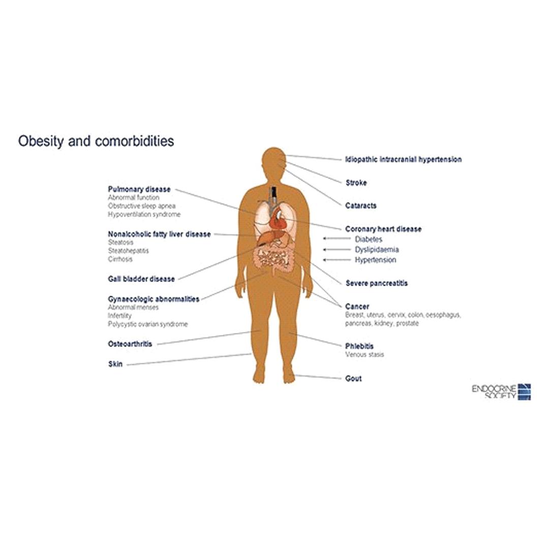 diabet și tratament articular