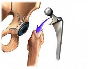 Recomandari pentru pacientii cu proteza totala de sold - dr. Radu Fleaca