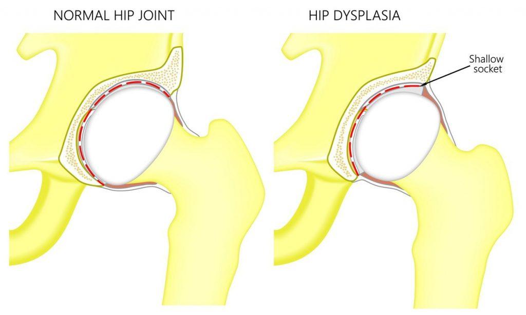 displazia articulației șoldului stâng cum se tratează)