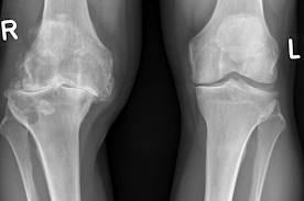 4 stadiu de artroză a genunchiului