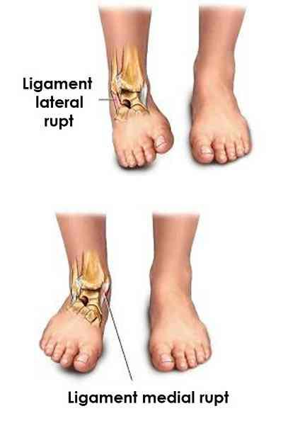 cum să tratezi deteriorarea ligamentelor gleznei