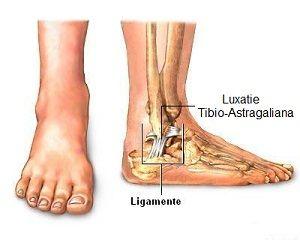 cum se tratează ruperea parțială a ligamentelor gleznei