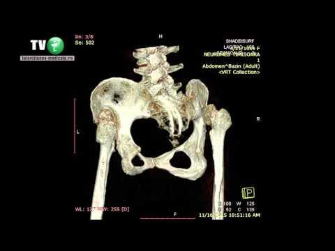 dureri crunches articulația șoldului