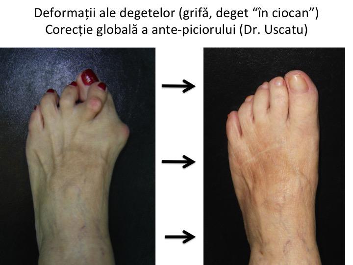 tratamentul artritei deformante a degetelor de la picioare