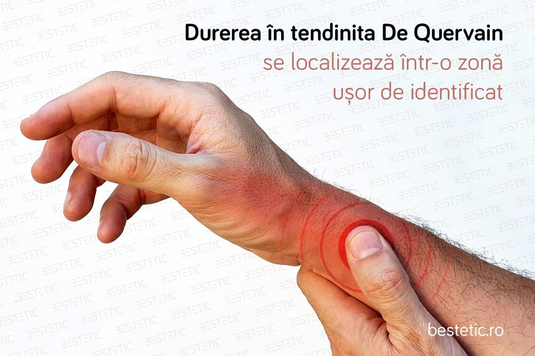 durere la mâna tratament de mână)
