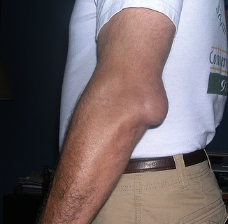 Unguente pentru tratamentul bursitei cotului si articulatiei genunchiului