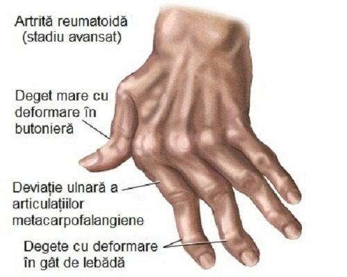 articulațiile de pe falangele mâinilor doare
