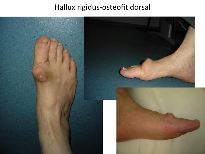3 Boala artrozica generalitati