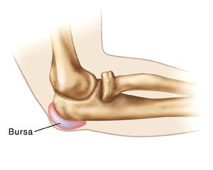 tratamentul eficient al bursitei articulației cotului)