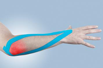 epicondilita simptomelor articulației cotului și tratamentul unguentului