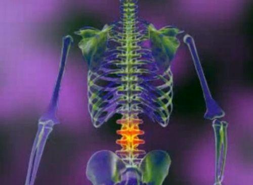 durere în întreaga coloană vertebrală și articulații)