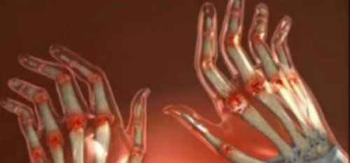 artrita reumatoidă a bolii mâinii umane