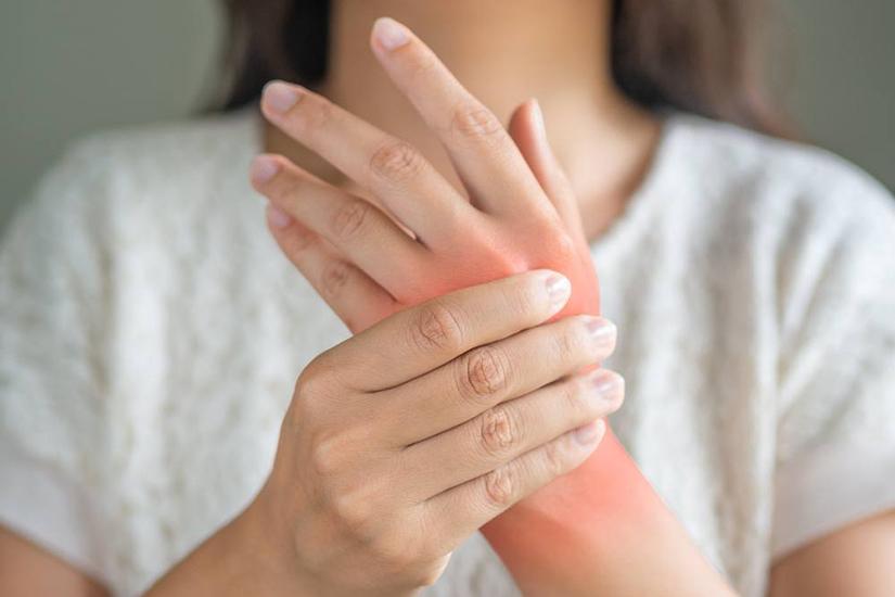 deformare articulară în artrita reumatoidă)