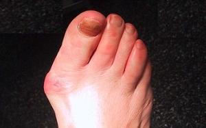 ce doare articulația degetului mare