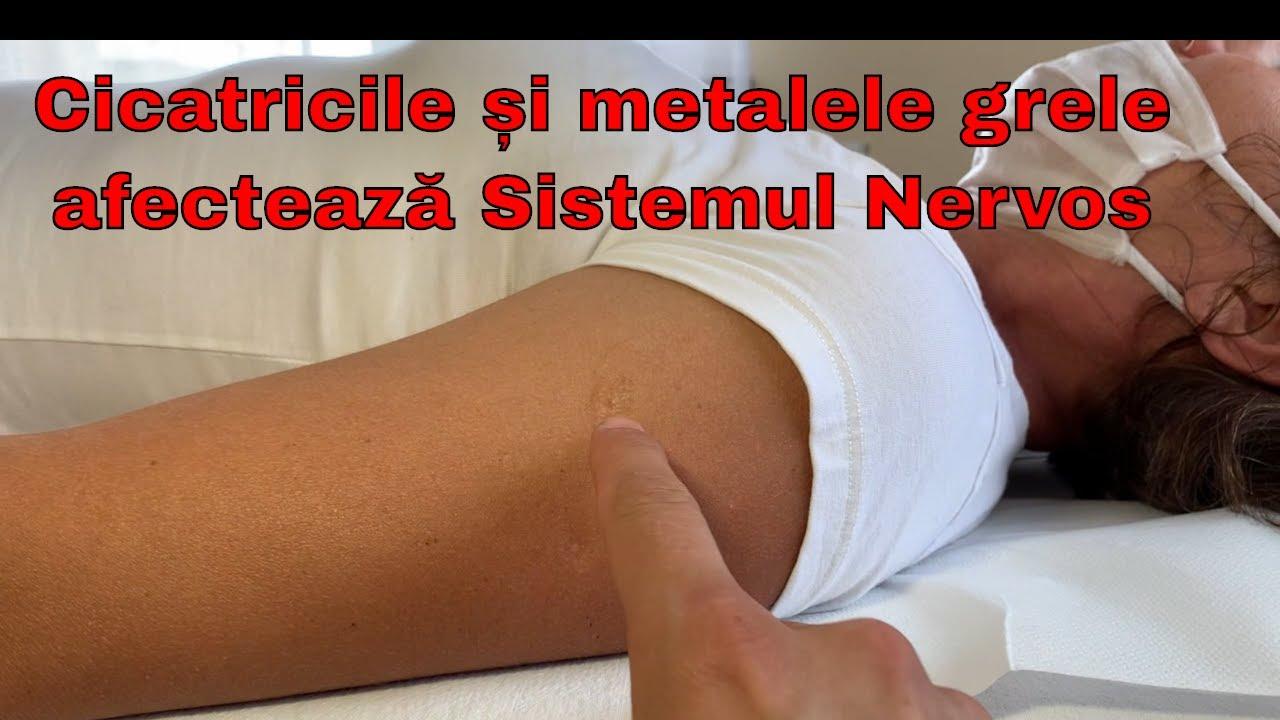 artroza consecințelor șoldului)