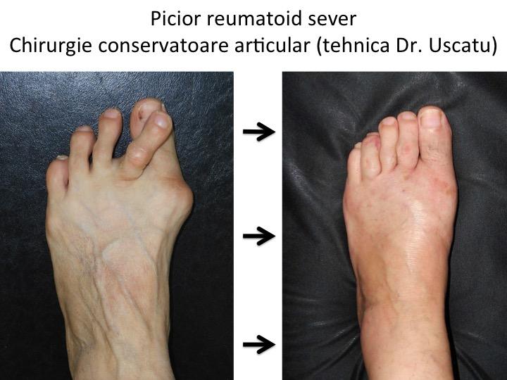 tratamentul leziunilor articulare ale piciorului)