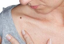 roseata pe piele si dureri articulare