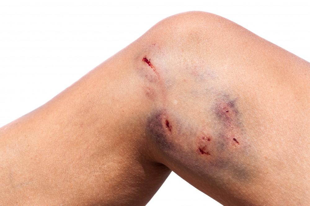 dureri articulare după mușcătură