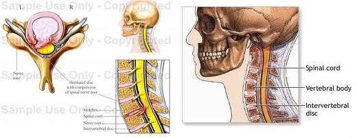 artroza și hernia tratamentului vertebrei cervicale)