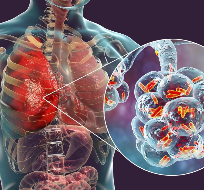 infecția durerilor articulare intestinale)