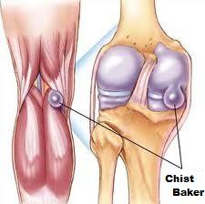 cum se tratează artroza fațetelor
