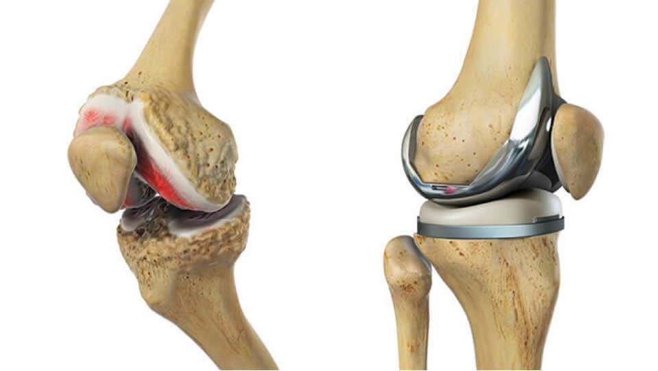 exfolierea cartilajului în tratamentul articulației genunchiului terapie articulară teraflex