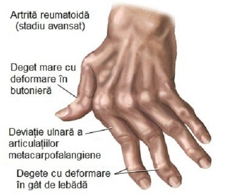 umflarea articulațiilor mâinilor