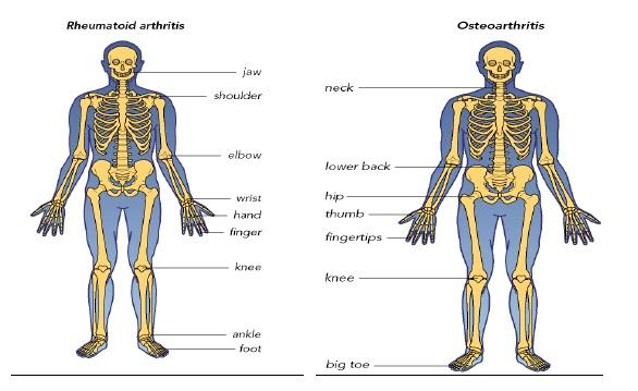 diagnosticul diferențial al clasificării bolilor articulare