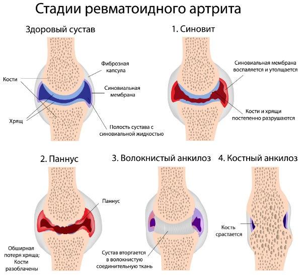 nume de boli ale articulațiilor picioarelor