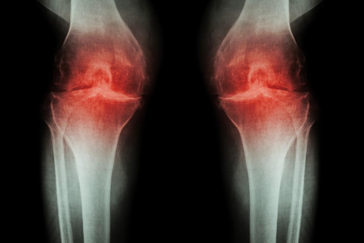 Infiltrațiile vâscoelastice pentru artroză