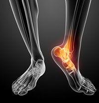 tratamentul post-traumatic al artrozei gleznei)