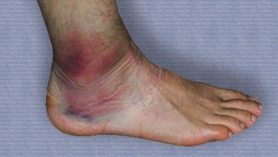 dureri de genunchi după ghemuite cum să vindecăm recenziile durerii articulare