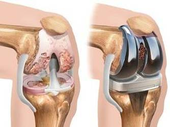 Artroza a ambilor genunchi   Forumul Medical ROmedic