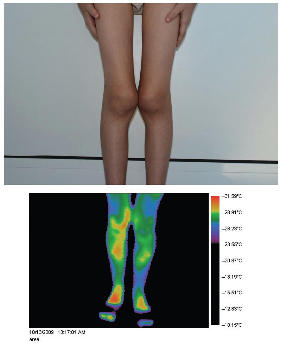 ciorapi de durere articulară)