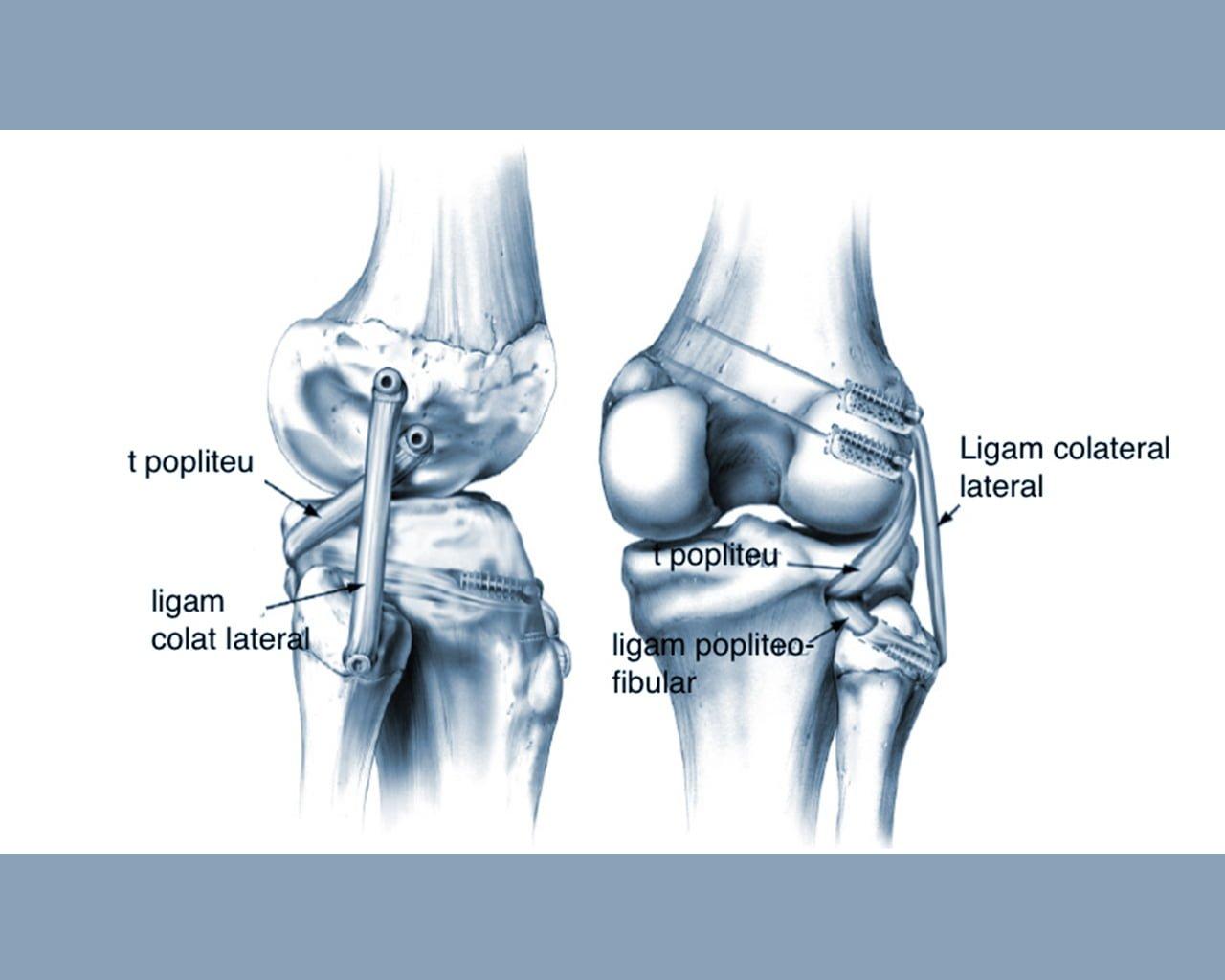 ligamentita ligamentului lateral intern al tratamentului articulației genunchiului)