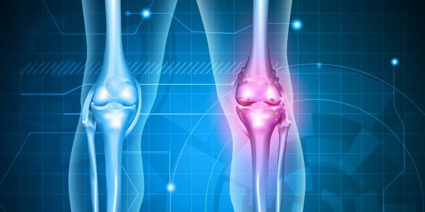 metoda de tratare a artrozei genunchiului)