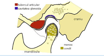 Disfunctiile articulatiei temporo-mandibulare
